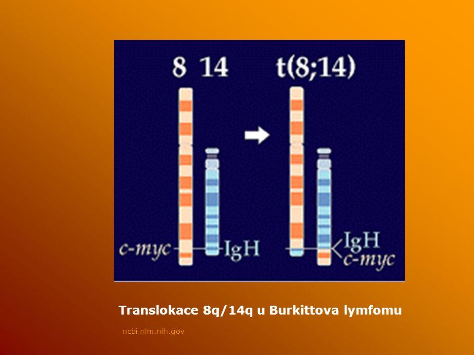 Translokace 8q/14q u Burkittova lymfomu ncbi.nlm.nih.gov