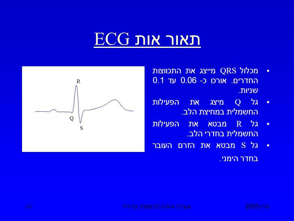 מרץ 2003 שערוך אות ECG מפרק כף היד 10 תאור אות ECG מכלול QRS מייצג את התכווצות החדרים.