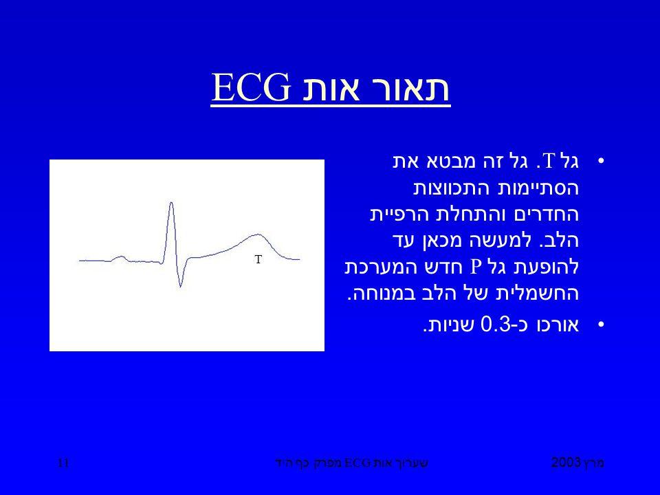 מרץ 2003 שערוך אות ECG מפרק כף היד 11 תאור אות ECG גל T.