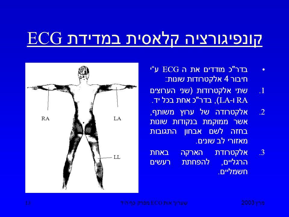 מרץ 2003 שערוך אות ECG מפרק כף היד 13 קונפיגורציה קלאסית במדידת ECG בדר כ מודדים את ה ECG ע י חיבור 4 אלקטרודות שונות : 1.