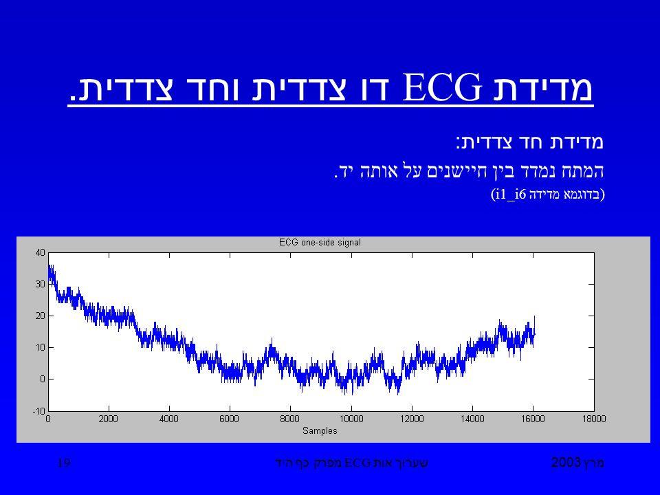 מרץ 2003 שערוך אות ECG מפרק כף היד 19 מדידת ECG דו צדדית וחד צדדית.