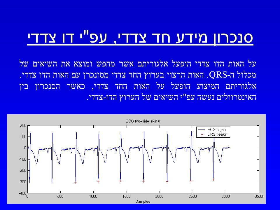 מרץ 2003 שערוך אות ECG מפרק כף היד 20 סנכרון מידע חד צדדי, עפ י דו צדדי על האות הדו צדדי הופעל אלגוריתם אשר מחפש ומוצא את השיאים של מכלול ה-QRS.