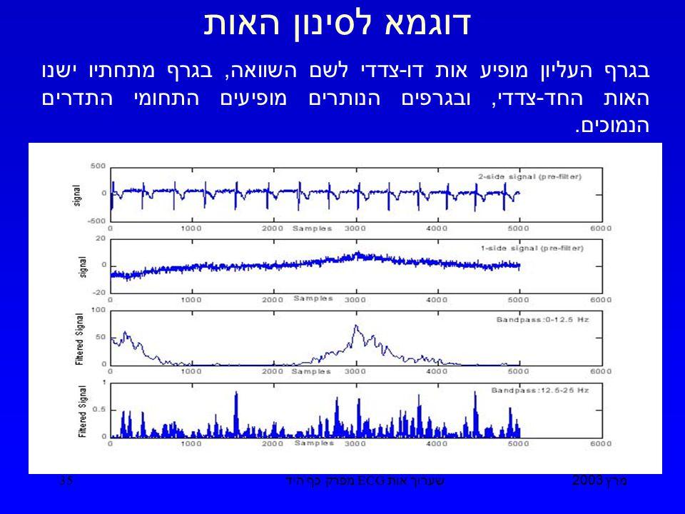 מרץ 2003 שערוך אות ECG מפרק כף היד 35 דוגמא לסינון האות בגרף העליון מופיע אות דו - צדדי לשם השוואה, בגרף מתחתיו ישנו האות החד - צדדי, ובגרפים הנותרים מופיעים התחומי התדרים הנמוכים.