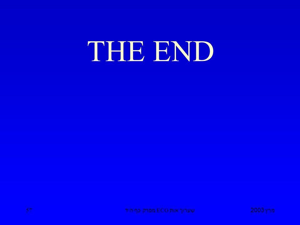מרץ 2003 שערוך אות ECG מפרק כף היד 57 THE END