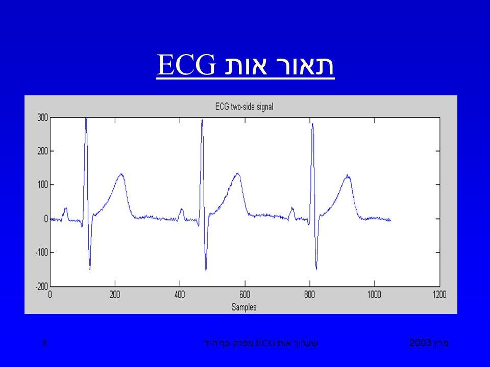 מרץ 2003 שערוך אות ECG מפרק כף היד 8 תאור אות ECG