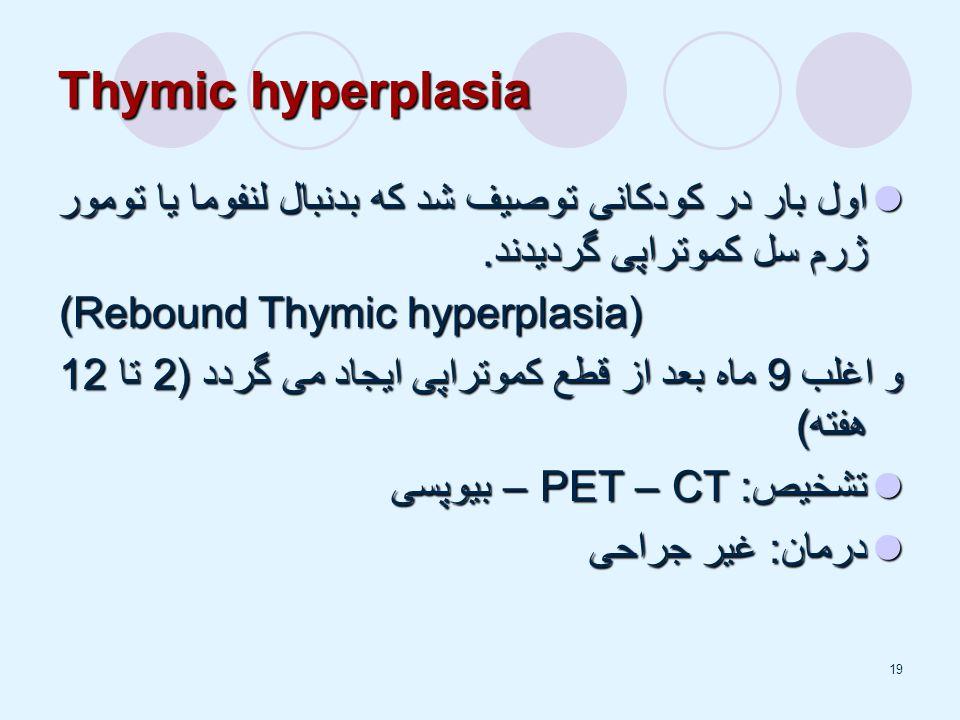 19 Thymic hyperplasia اول بار در کودکانی توصیف شد که بدنبال لنفوما یا تومور ژرم سل کموتراپی گردیدند.