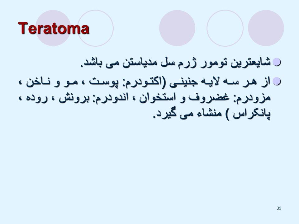 39 Teratoma شایعترین تومور ژرم سل مدیاستن می باشد.