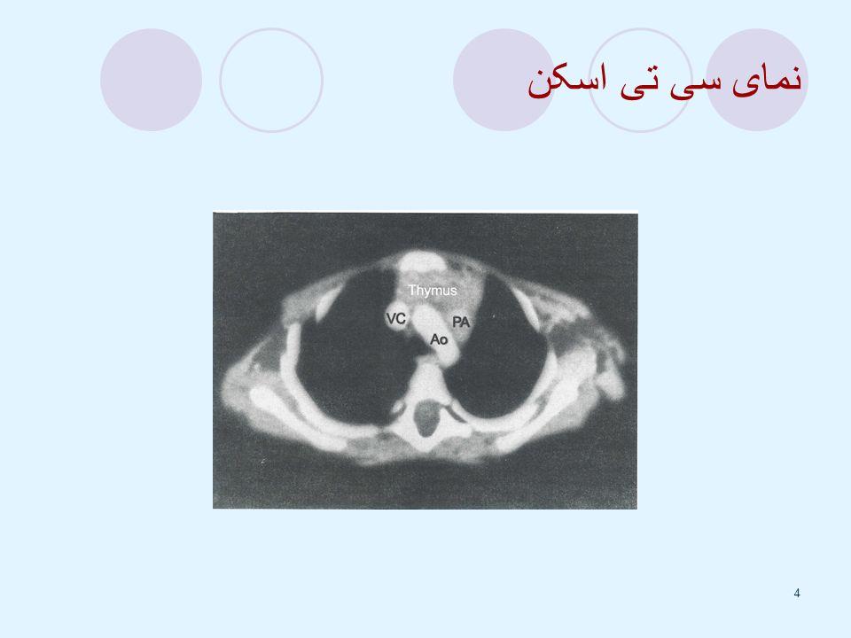 5 A- محتویات نرمال مدیاستن قدامی : (1) غده تیموس (2) شریان پستان داخلی (3) غدد لنفاوی (4) چربی B- محتویات نرمال مدیاستن میانی: (1) پریکارد قلب (2) آئورت صعودی و عرضی (3) SVC و IVC (4) شریان ورید براکیوستالیک (5) عصب فرنیک و واگ (6) تراشه (7) برشهای اصلی و عروق اصلی ریوی C- محتویات نرمال مدیاستن خلفی : (1) آئورت ترولی (2) مری (3) توراسیک داکت (4) آزیگوسی و همی آزیگوس (5) غدد لنفاوی