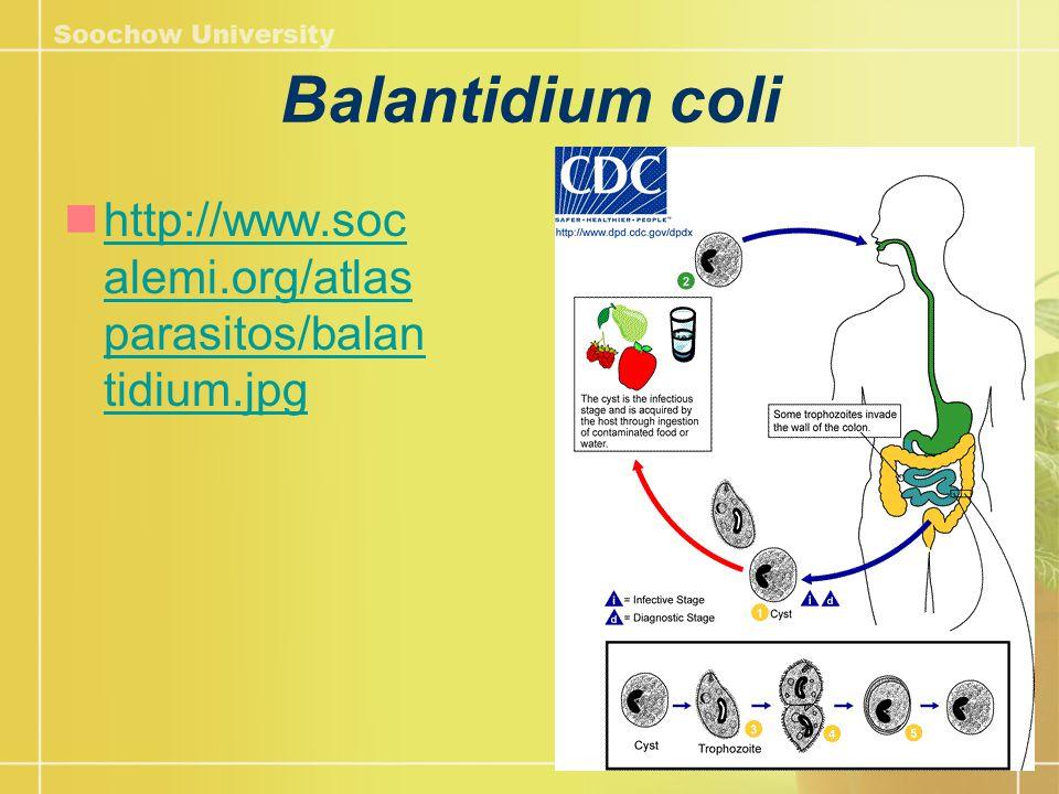 Balantidium coli http://www.soc alemi.org/atlas parasitos/balan tidium.jpg http://www.soc alemi.org/atlas parasitos/balan tidium.jpg
