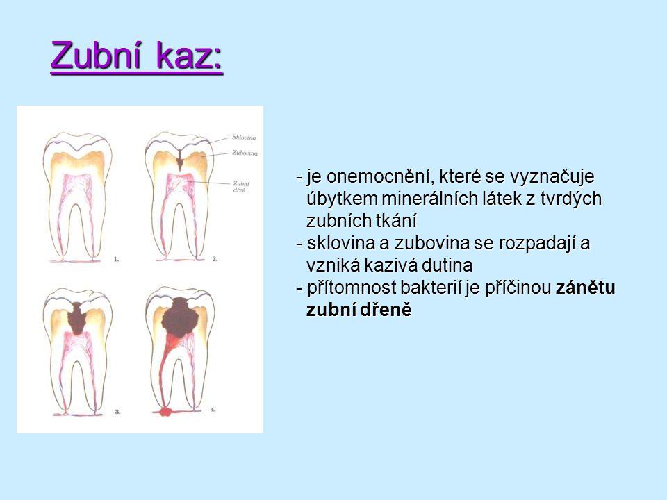 Zubní kaz: - je onemocnění, které se vyznačuje úbytkem minerálních látek z tvrdých úbytkem minerálních látek z tvrdých zubních tkání zubních tkání - s