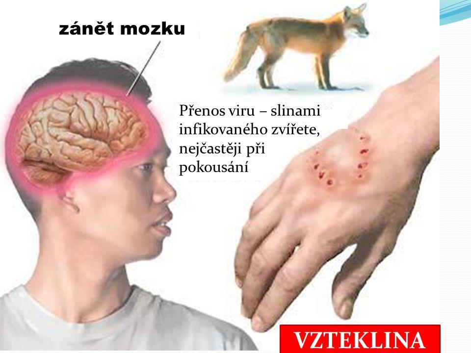VZTEKLINA Přenos viru – slinami infikovaného zvířete, nejčastěji při pokousání zánět mozku