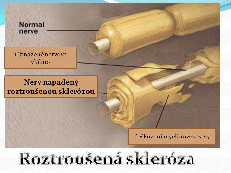 Poškození myelinové vrstvy Nerv napadený roztroušenou sklerózou Obnažené nervové vlákno