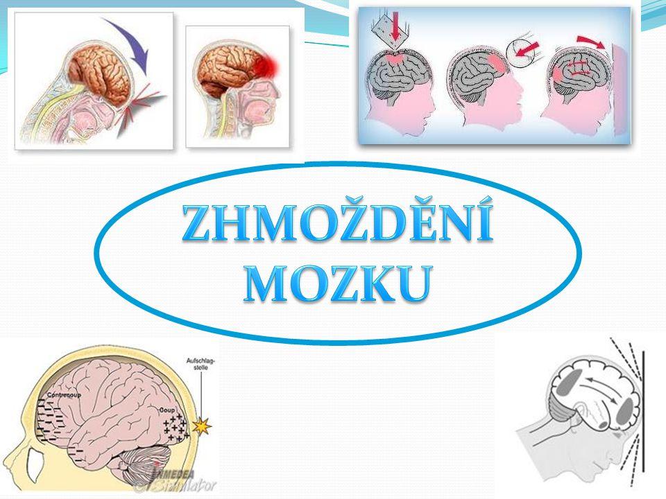Epilepsie je záchvatovité onemocnění mozku.