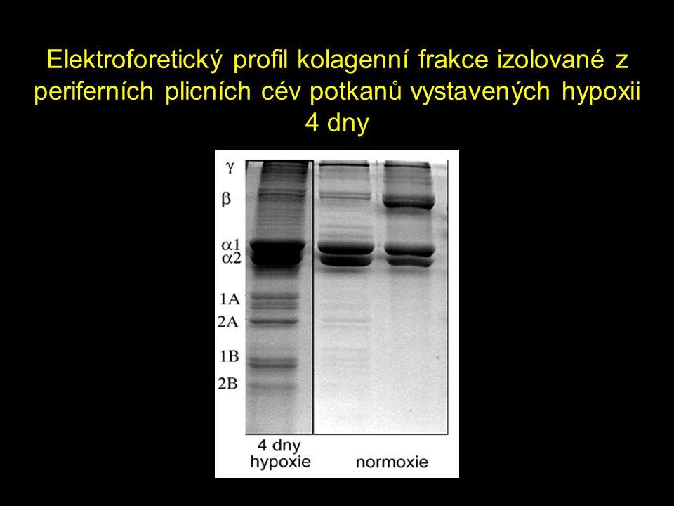 Elektroforetický profil kolagenní frakce izolované z periferních plicních cév potkanů vystavených hypoxii 4 dny