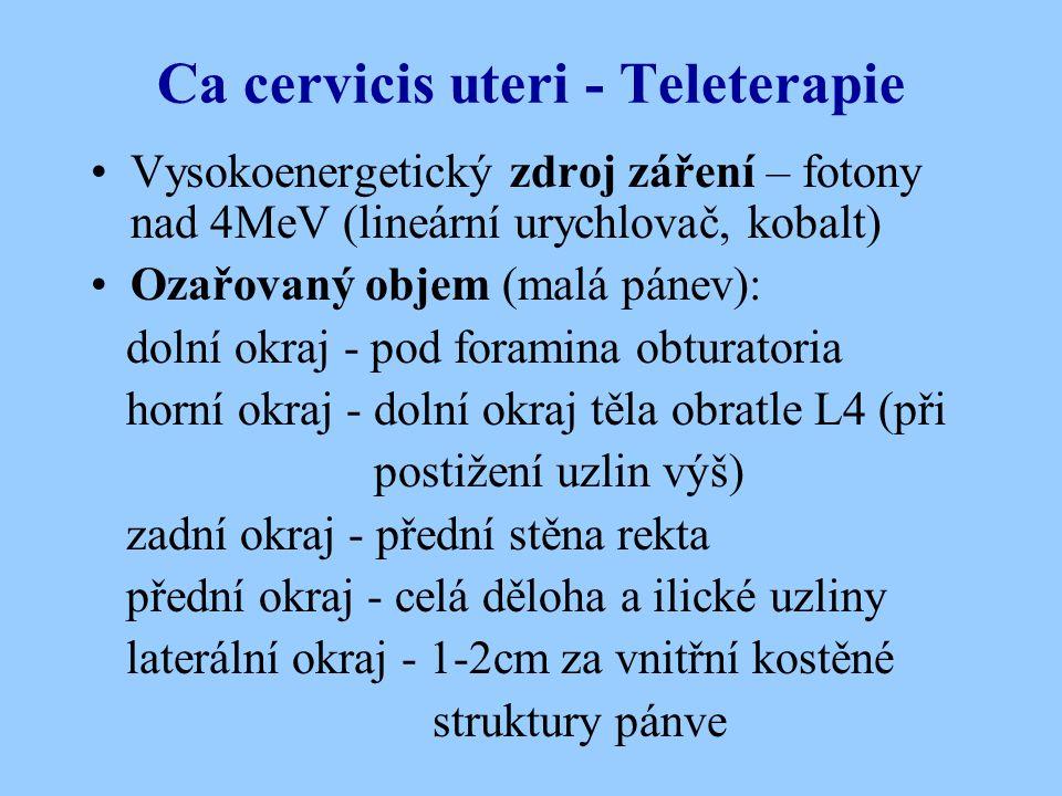 Ca cervicis uteri - Teleterapie Vysokoenergetický zdroj záření – fotony nad 4MeV (lineární urychlovač, kobalt) Ozařovaný objem (malá pánev): dolní okr