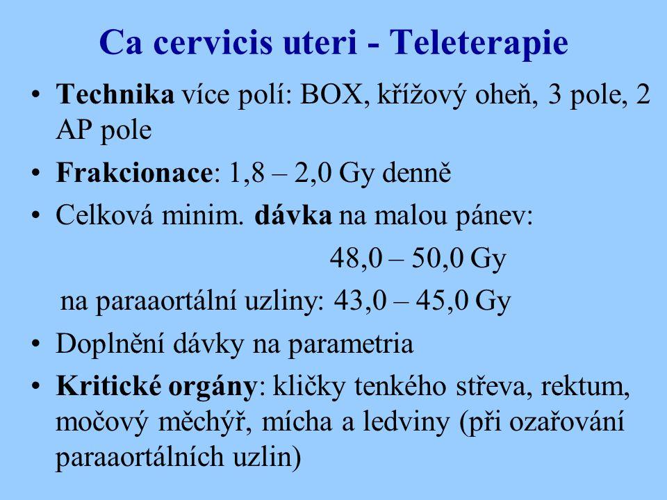Ca cervicis uteri - Teleterapie Technika více polí: BOX, křížový oheň, 3 pole, 2 AP pole Frakcionace: 1,8 – 2,0 Gy denně Celková minim. dávka na malou