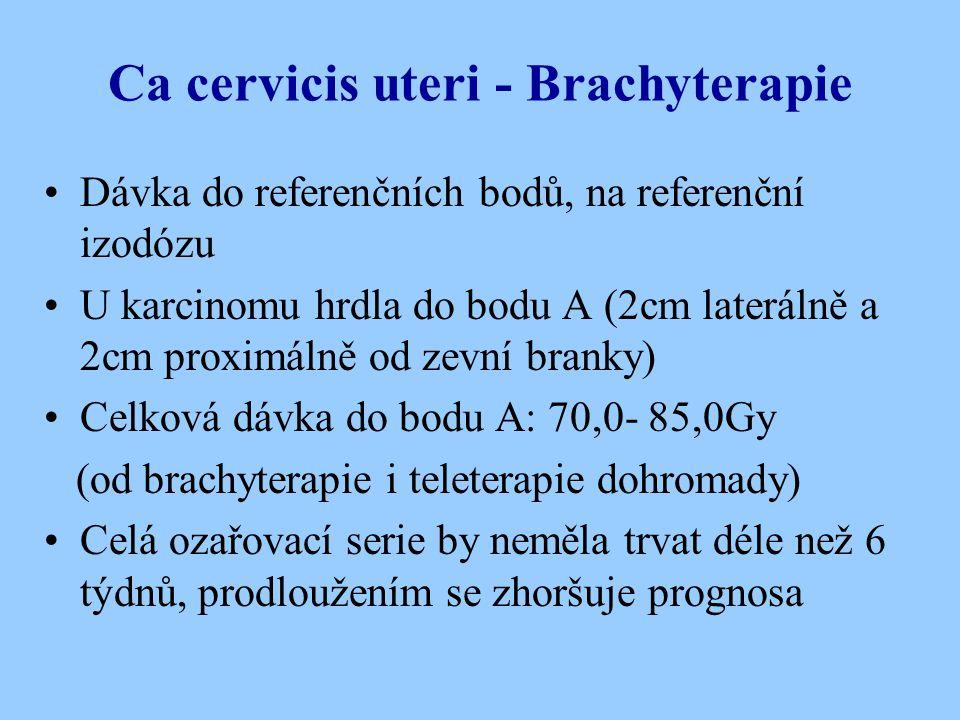 Ca cervicis uteri - Brachyterapie Dávka do referenčních bodů, na referenční izodózu U karcinomu hrdla do bodu A (2cm laterálně a 2cm proximálně od zev