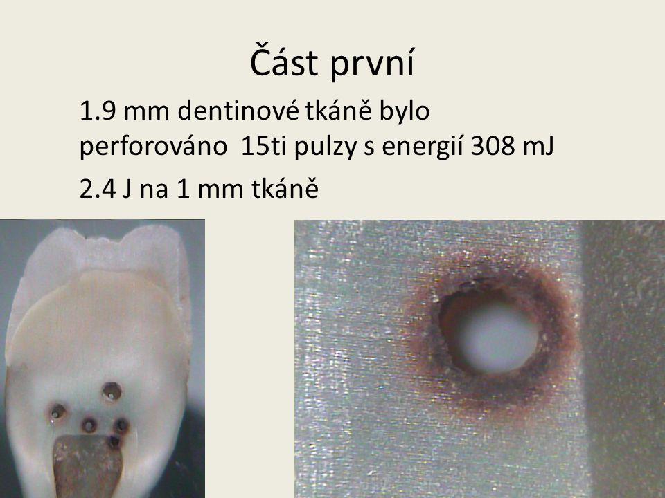 Část první 1.9 mm dentinové tkáně bylo perforováno 15ti pulzy s energií 308 mJ 2.4 J na 1 mm tkáně