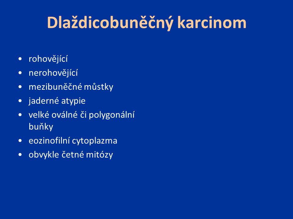 Dlaždicobuněčný karcinom rohovějící nerohovějící mezibuněčné můstky jaderné atypie velké oválné či polygonální buňky eozinofilní cytoplazma obvykle če