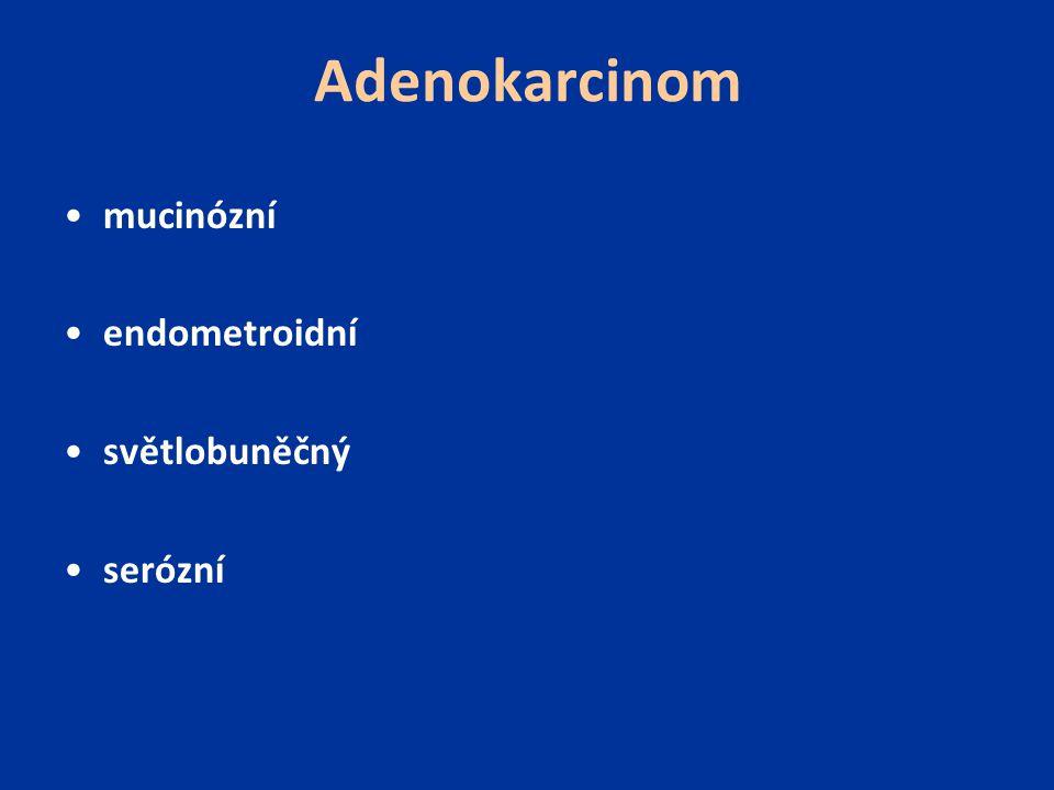 Adenokarcinom mucinózní endometroidní světlobuněčný serózní