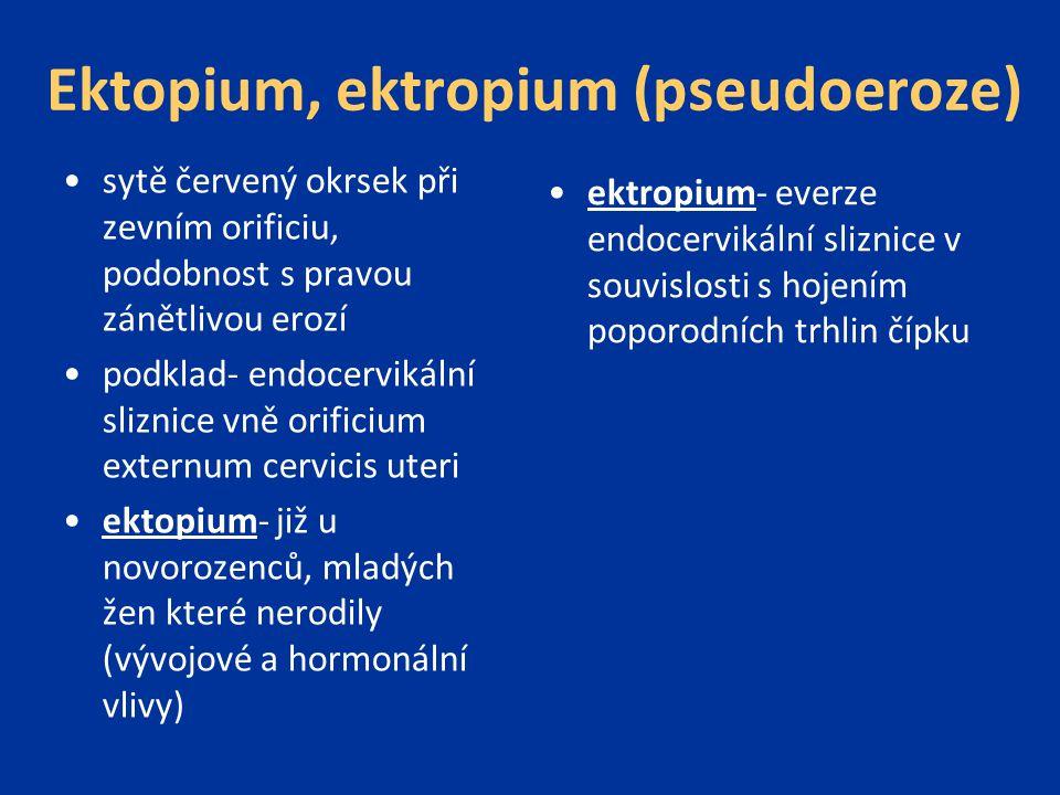 Ektopium, ektropium (pseudoeroze) sytě červený okrsek při zevním orificiu, podobnost s pravou zánětlivou erozí podklad- endocervikální sliznice vně or