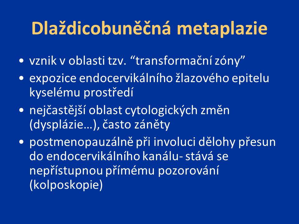 """Dlaždicobuněčná metaplazie vznik v oblasti tzv. """"transformační zóny"""" expozice endocervikálního žlazového epitelu kyselému prostředí nejčastější oblast"""