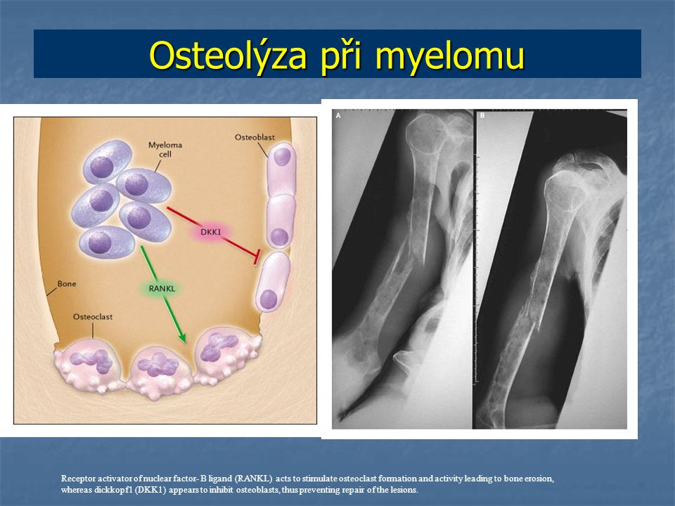 Osteolýza při myelomu Receptor activator of nuclear factor- B ligand (RANKL) acts to stimulate osteoclast formation and activity leading to bone erosion, whereas dickkopf1 (DKK1) appears to inhibit osteoblasts, thus preventing repair of the lesions.
