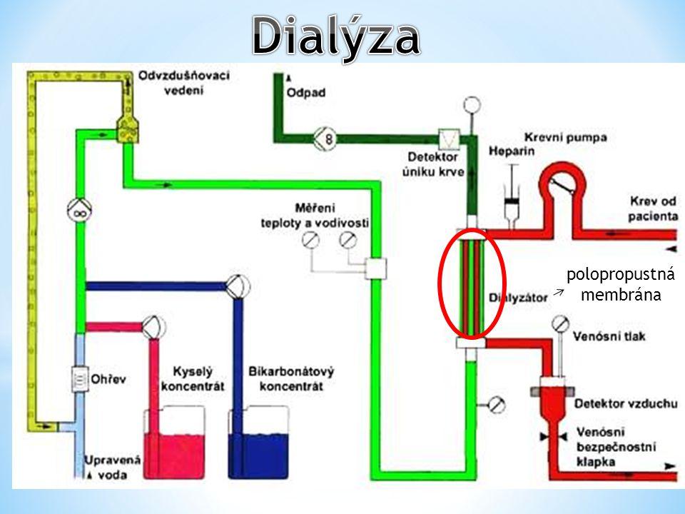 odpadní tekutina dutina břišní trubička dyalizační roztok