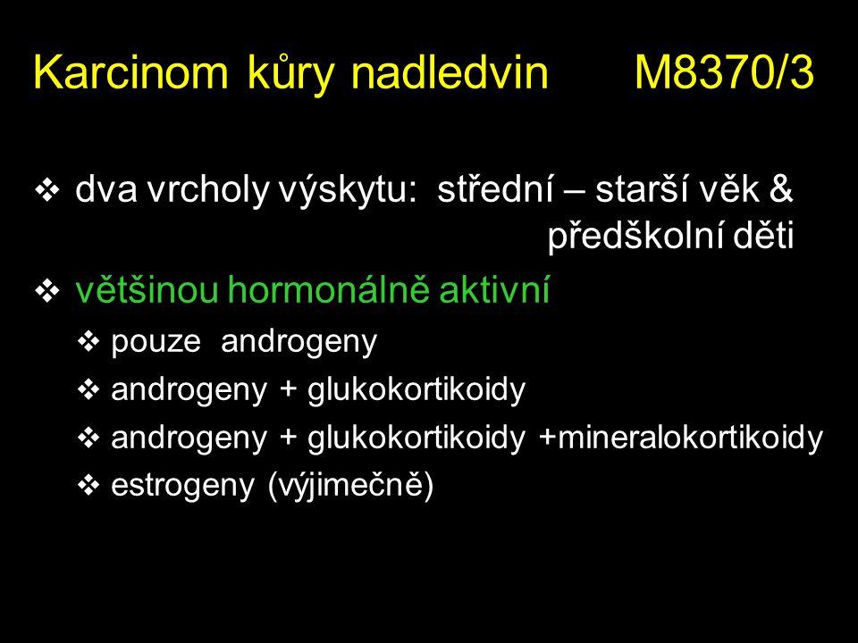 Karcinom kůry nadledvin M8370/3  dva vrcholy výskytu: střední – starší věk & předškolní děti  většinou hormonálně aktivní  pouze androgeny  androg
