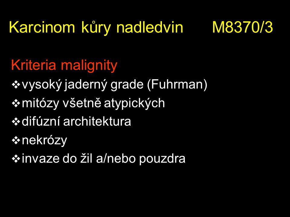 Kriteria malignity  vysoký jaderný grade (Fuhrman)  mitózy všetně atypických  difúzní architektura  nekrózy  invaze do žil a/nebo pouzdra Karcino
