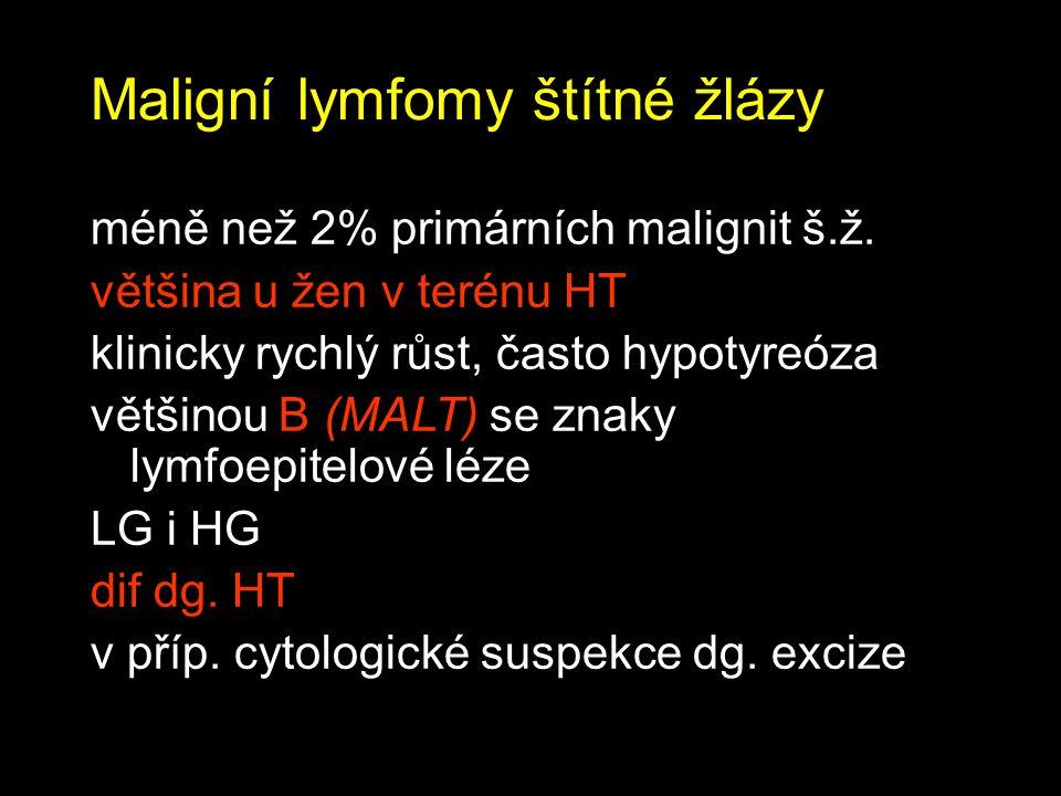 Maligní lymfomy štítné žlázy méně než 2% primárních malignit š.ž. většina u žen v terénu HT klinicky rychlý růst, často hypotyreóza většinou B (MALT)
