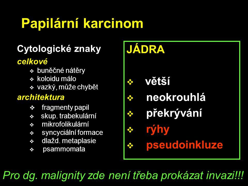 Papilární karcinom Cytologické znaky celkové  buněčné nátěry  koloidu málo  vazký, může chybět architektura  fragmenty papil  skup. trabekulární