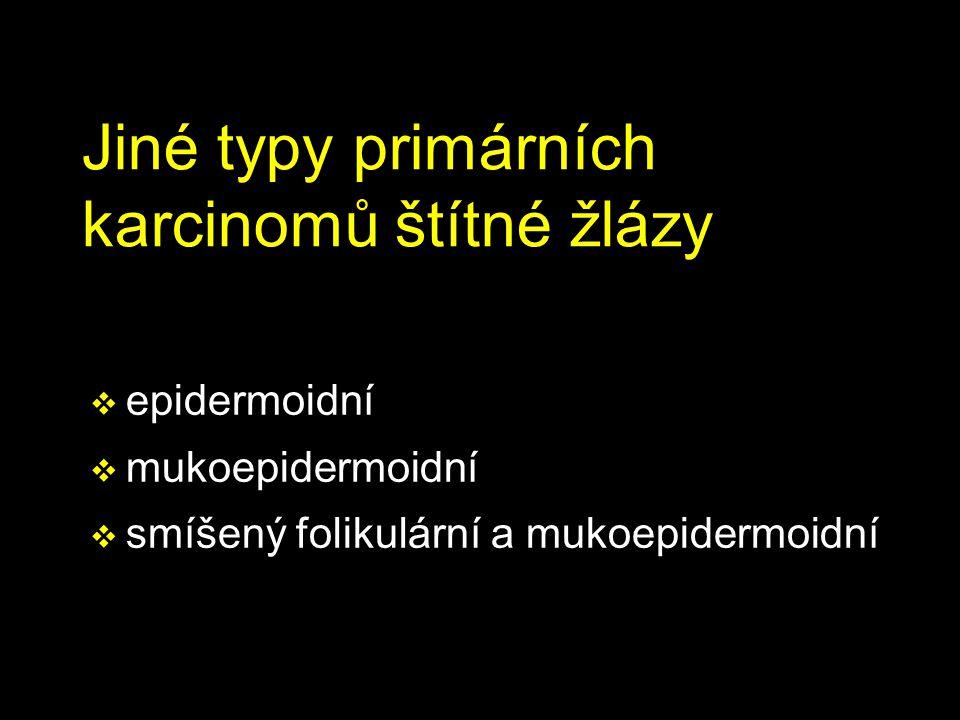 Jiné typy primárních karcinomů štítné žlázy  epidermoidní  mukoepidermoidní  smíšený folikulární a mukoepidermoidní
