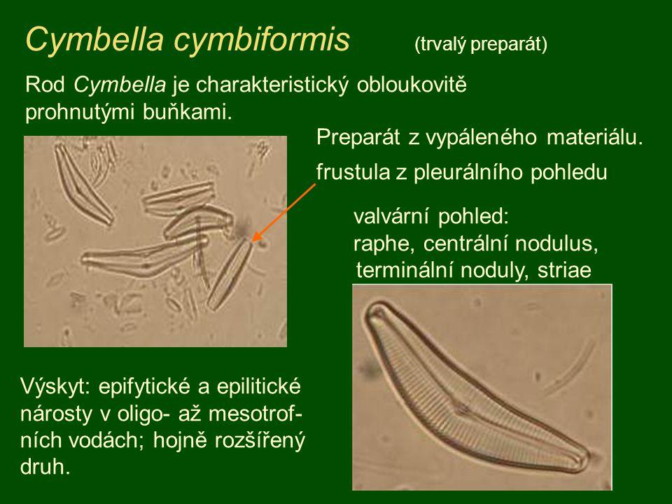 Cymbella cymbiformis (trvalý preparát) Rod Cymbella je charakteristický obloukovitě prohnutými buňkami. Preparát z vypáleného materiálu. frustula z pl
