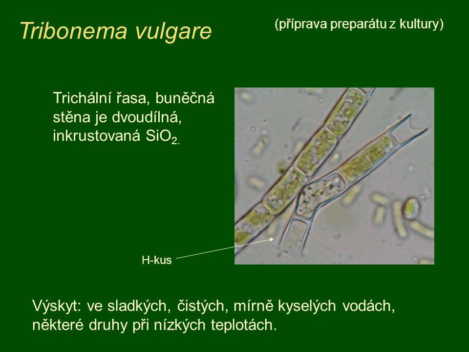 Tribonema vulgare (příprava preparátu z kultury) Trichální řasa, buněčná stěna je dvoudílná, inkrustovaná SiO 2. Výskyt: ve sladkých, čistých, mírně k