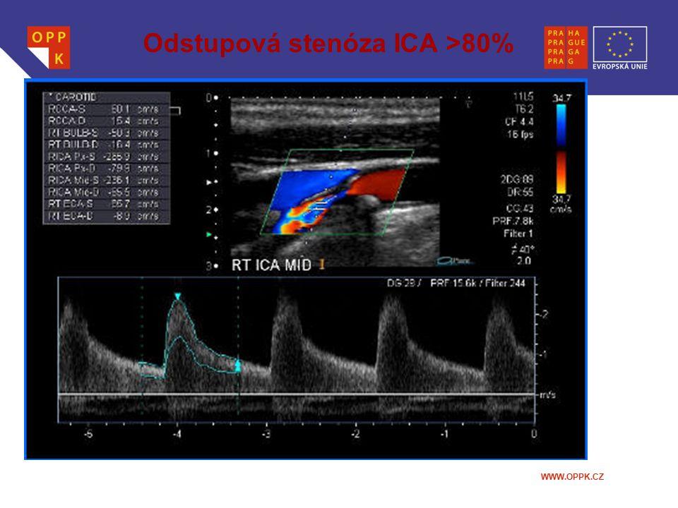 WWW.OPPK.CZ Odstupová stenóza ICA >80%