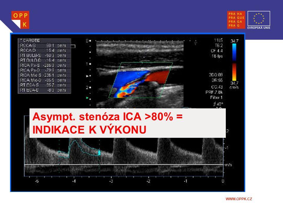 WWW.OPPK.CZ Asympt. stenóza ICA >80% = INDIKACE K VÝKONU