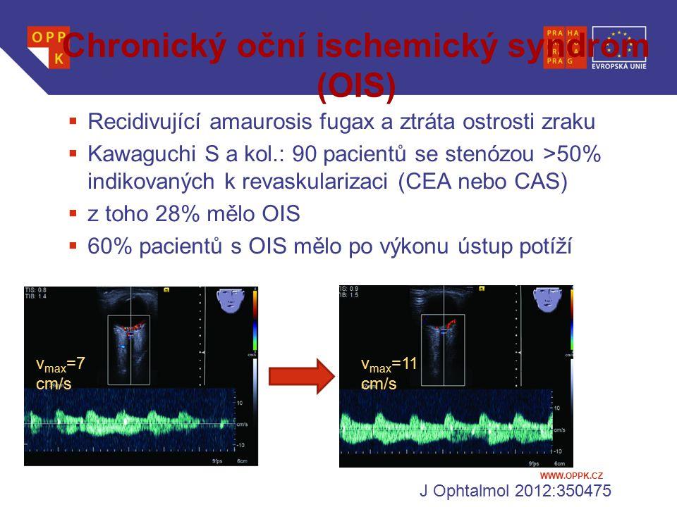 WWW.OPPK.CZ Chronický oční ischemický syndrom (OIS)  Recidivující amaurosis fugax a ztráta ostrosti zraku  Kawaguchi S a kol.: 90 pacientů se stenóz