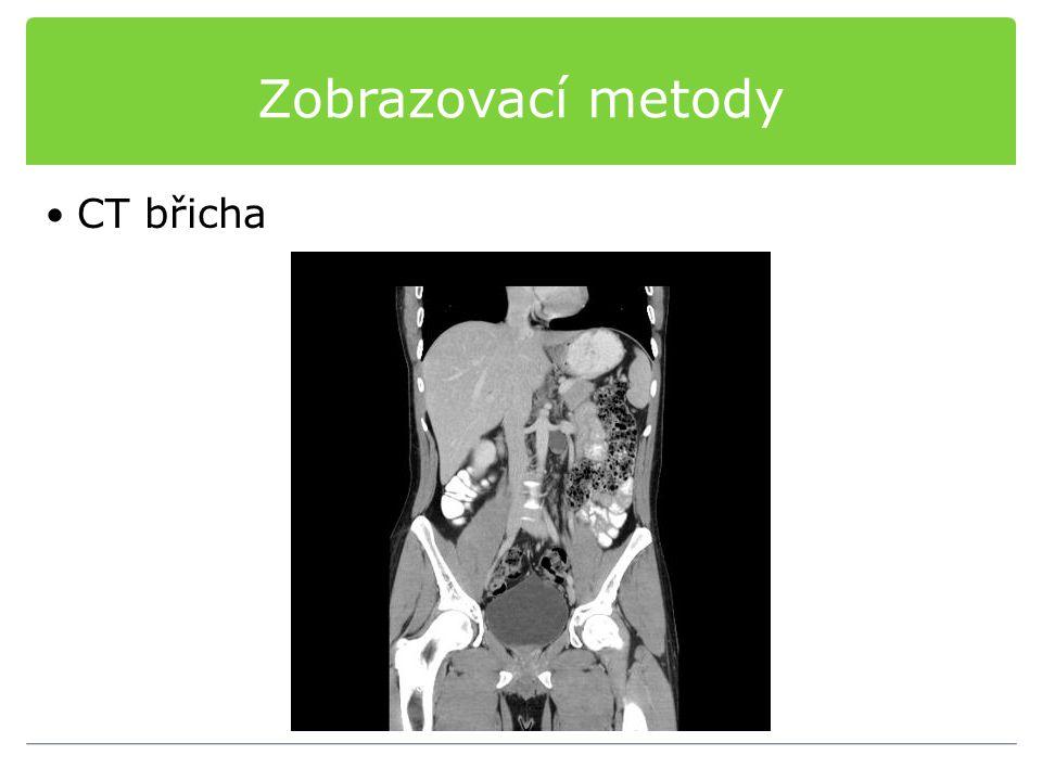 Zobrazovací metody CT břicha