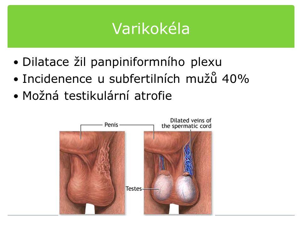 Varikokéla Dilatace žil panpiniformního plexu Incidenence u subfertilních mužů 40% Možná testikulární atrofie