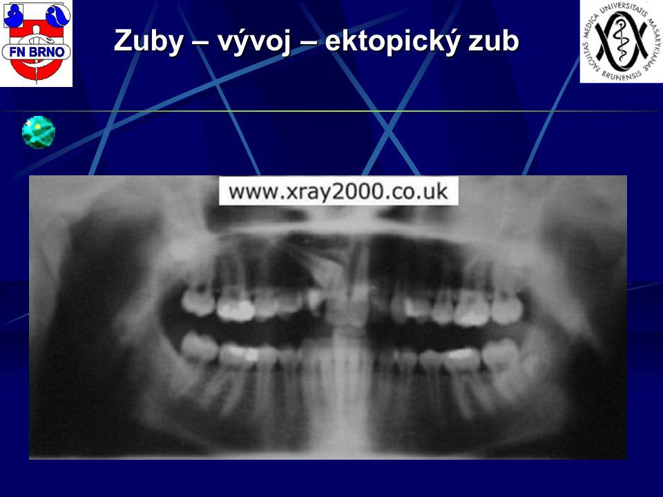 Zuby – vývoj – ektopický zub
