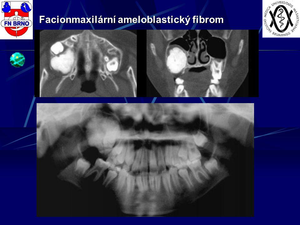 Facionmaxilární ameloblastický fibrom