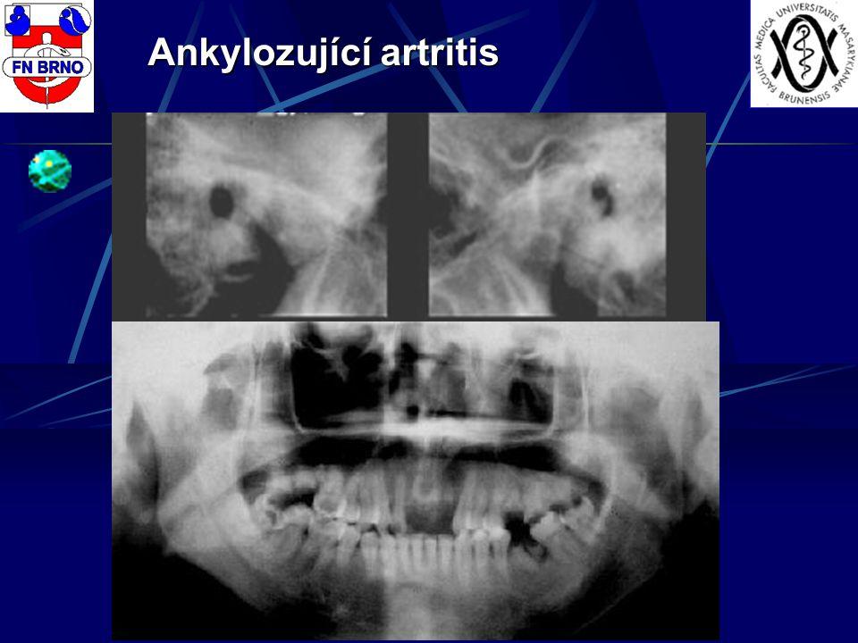 Ankylozující artritis