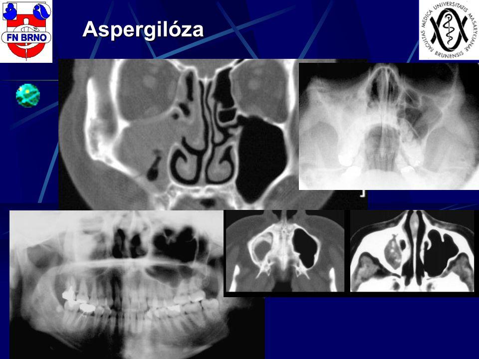Aspergilóza
