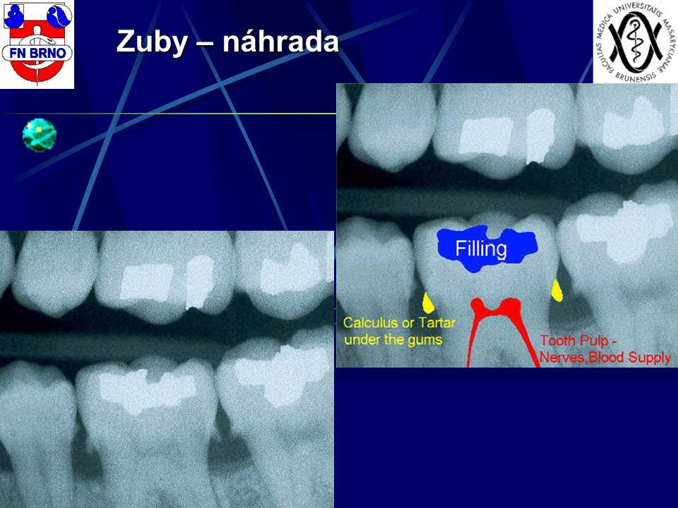 Zuby – náhrada