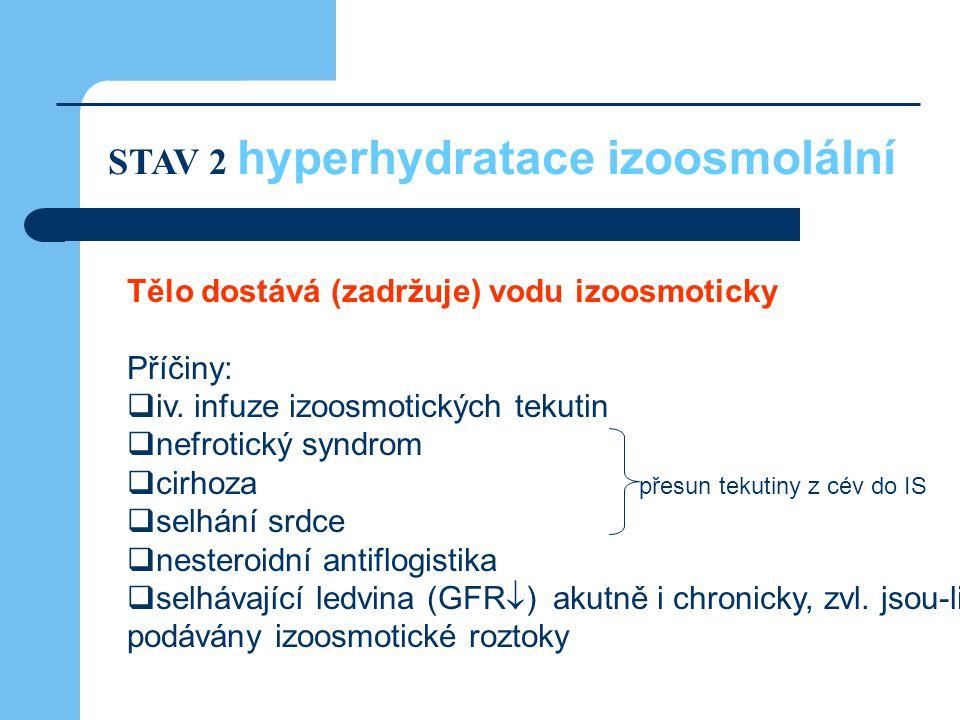 Tělo dostává (zadržuje) vodu izoosmoticky Příčiny:  iv. infuze izoosmotických tekutin  nefrotický syndrom  cirhoza přesun tekutiny z cév do IS  se