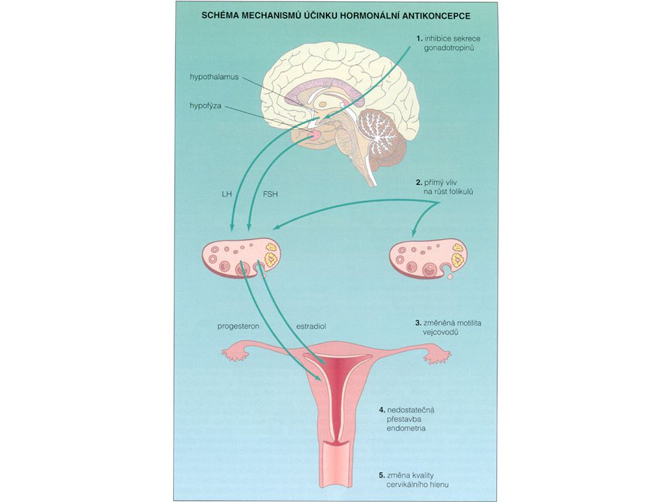 STEROIDNÍ KONTRACEPCE - II ethinylestradiol - 20 - 50  g (+progestin: levonorgestrel, norgestimat …) 1 tbl 21 dnů - 7 denní pauza - pseudomenstruace ( krvácení ze spádu) Mech.