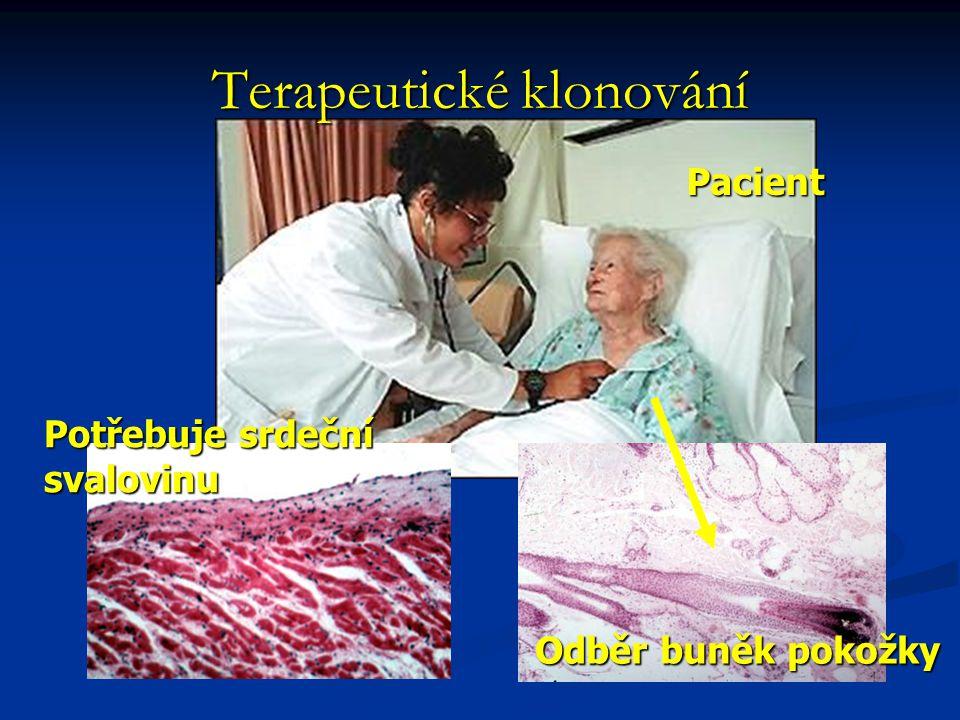 Odběr buněk pokožky Potřebuje srdeční svalovinu Pacient Terapeutické klonování