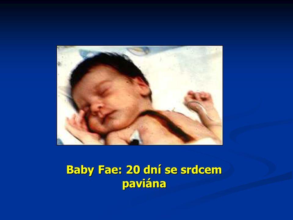 Baby Fae: 20 dní se srdcem paviána