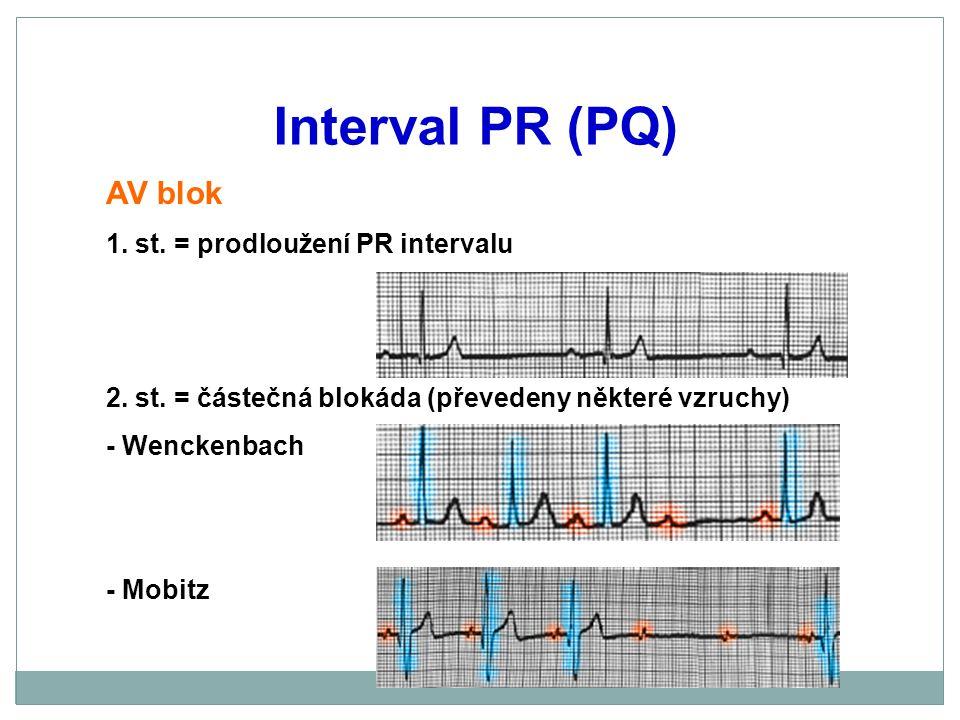 Interval PR (PQ) AV blok 1. st. = prodloužení PR intervalu 2. st. = částečná blokáda (převedeny některé vzruchy) - Wenckenbach - Mobitz